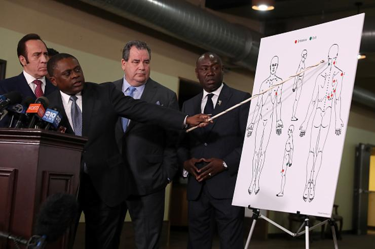 Attorney Dale Galipo, Dr. Bennet Omalu, attorney Brian Panish and attorney Ben Crump examine a picture showing gunshot wounds to Stephon Clark during a news conference at the Southside Christian Center on March 30, 2018 in Sacramento, California.